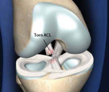 What you don't see - mental struggles of tearing the ACL